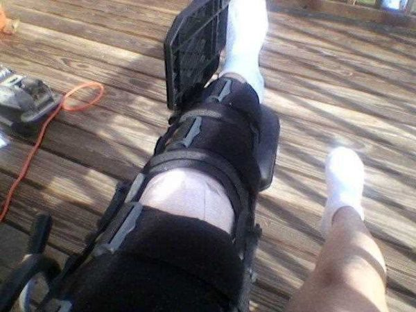 Knee Pain Treatment – All About The Importance Of Knee Braces